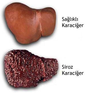 karaciger-sirozu