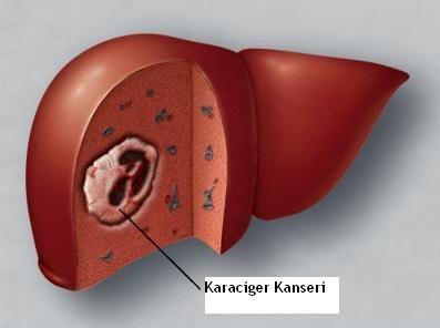 karaciger-kanseri