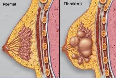 fibrokistik-bozukluk