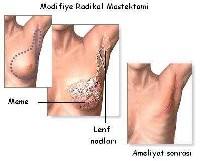 radikal-mastektomi