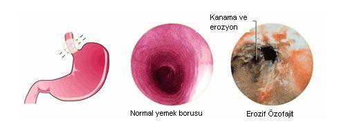 peptik-ozofajit