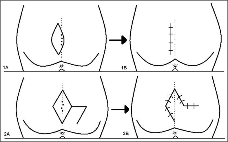 pilonidal-sinusta-tedavi-yontemleri-nelerdir