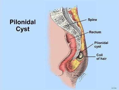 pilonidal-sinuste-tedavi-secimi-nasil-yapilir