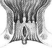 anal-fissur